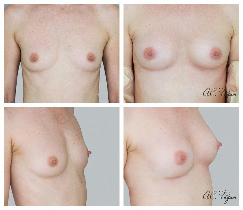 Липофилинг груди. Представлен ранний результат . Фадин А.С.