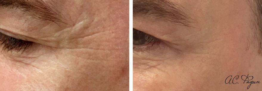 Инъекции Диспорт. Морщины у наружного края глаза.  Фадин А.С.