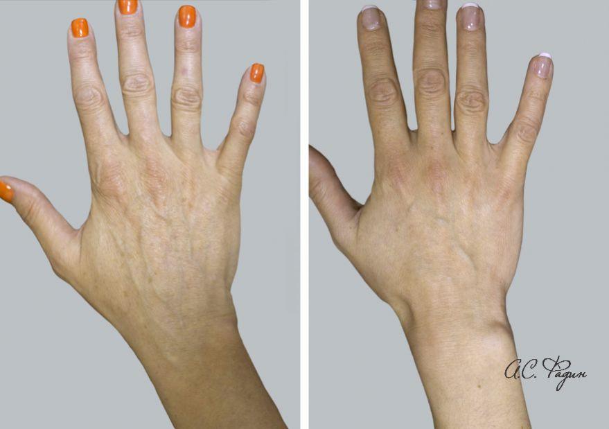 Похудение рука кисть
