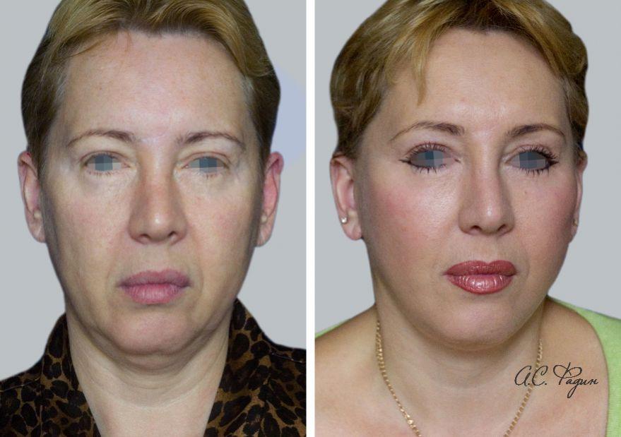 Подтяжка и липофилинг лица