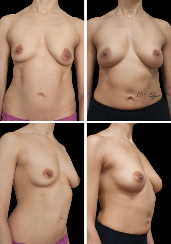 Периареолярная подтяжка груди слева и липофилинг молочных желёз
