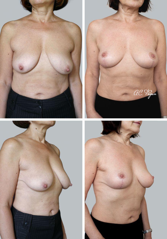Подтяжка груди без применения имплантатов