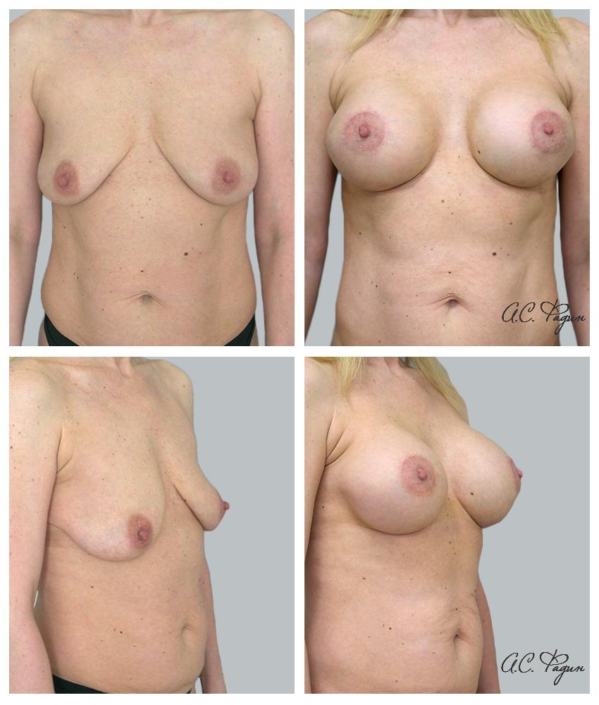 Периареолярная подтяжка груди с увеличением имплантатами