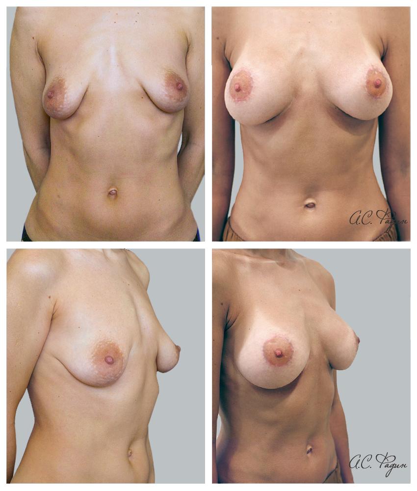 Подтяжка груди с увеличением имплантатами