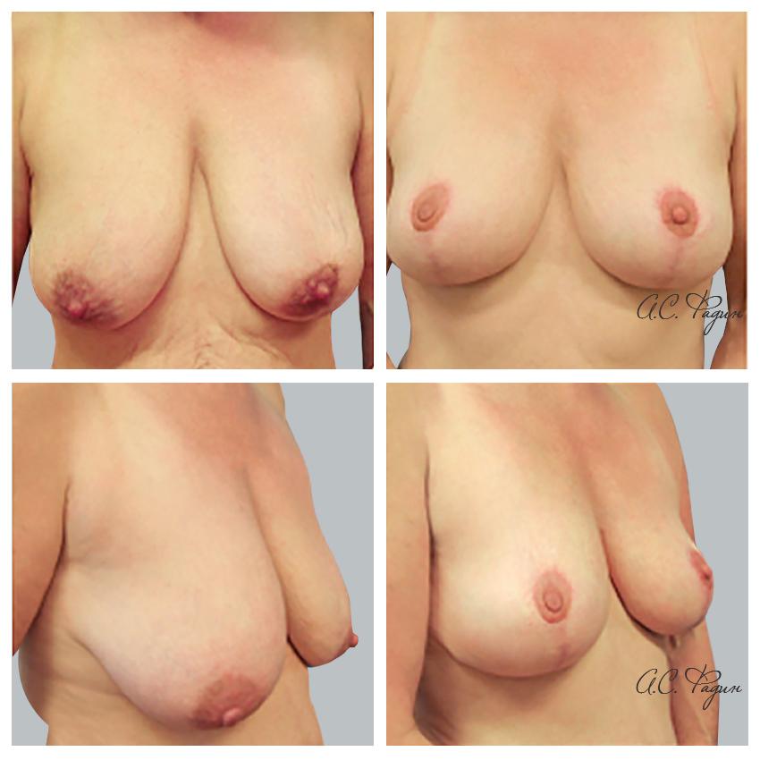 Подтяжка и уменьшение груди