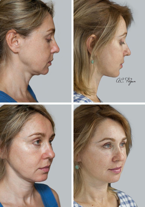 Выполнена подтяжка нижних двух третей лица, липофилинг щёк. Фадин А.С.