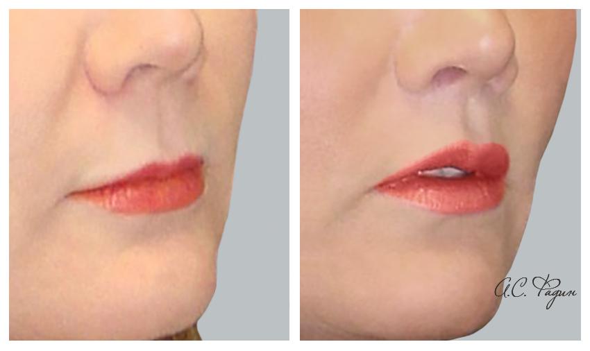 Выполнена операция Буллхорн - подтяжка верхней губы. Фадин А.С.