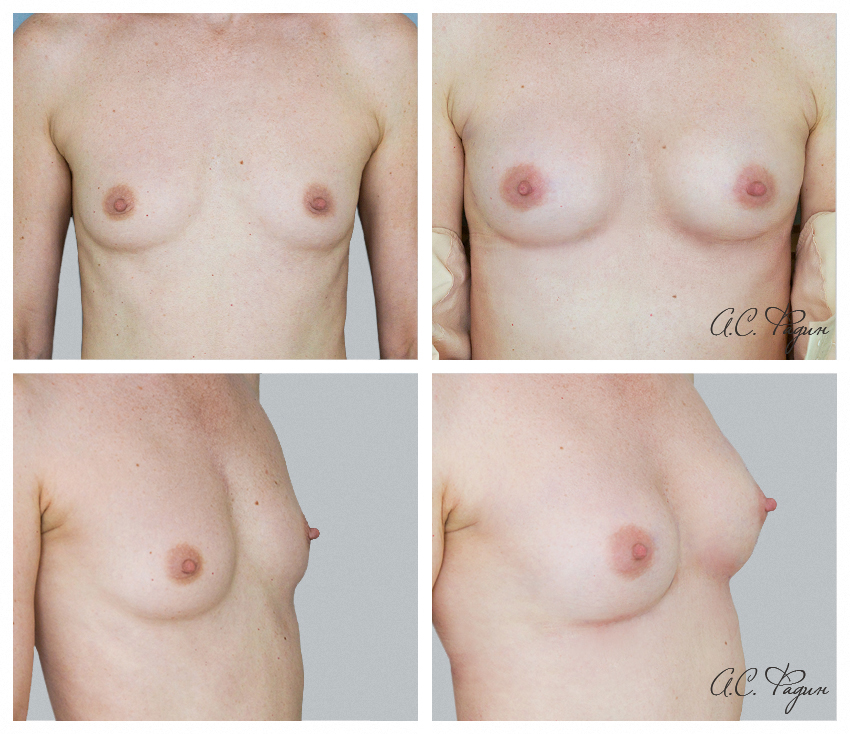 Увеличение груди липофилингом (собственным жиром). Фадин А.С.