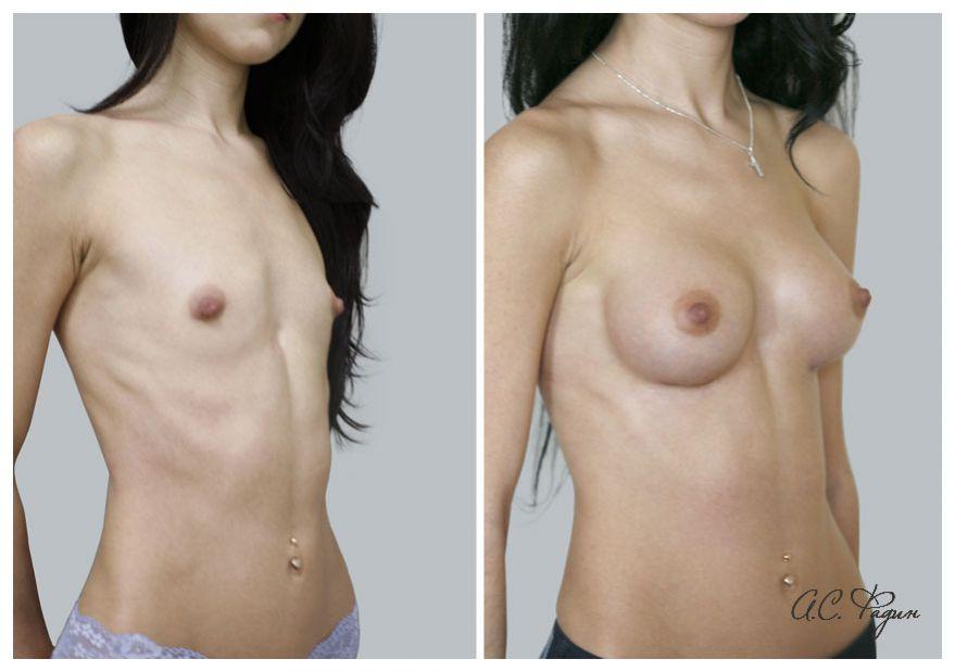 Увеличение груди имплантатами Natrelle 225 мл. Фадин А.С.