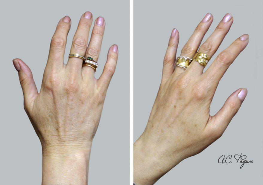Омоложение кистей рук липофилингом. Коррекция возрастных изменений. Фадин А.С.