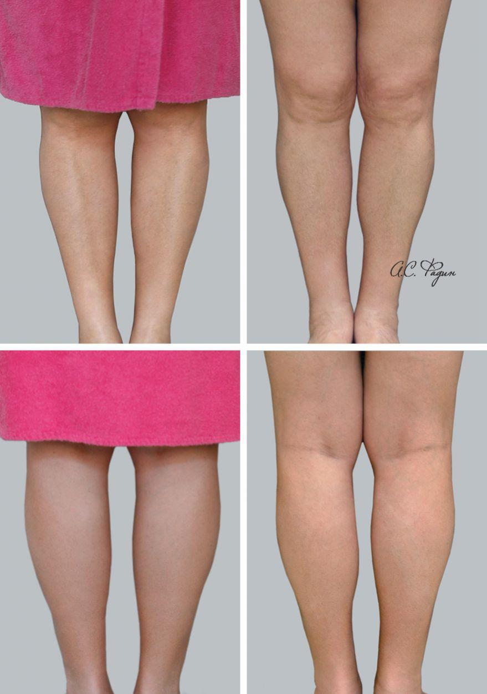 Увеличение голеней имплантатами. 2 недели после операции. Фадин А.С.