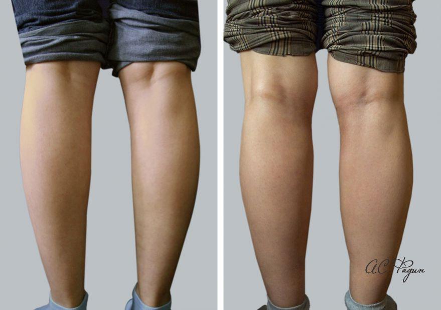 Увеличение голеней имплантатами. Установлены силиконовые имплантаты. Фадин А.С.