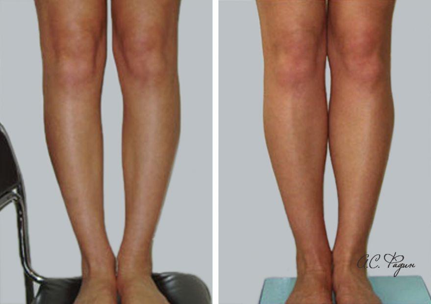 Увеличение голеней имплантатами. Фадин А.С.