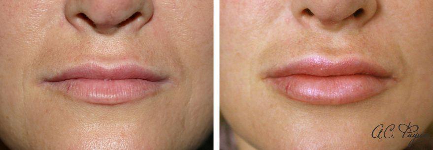 Увеличение губ филлером. Фадин А.С.