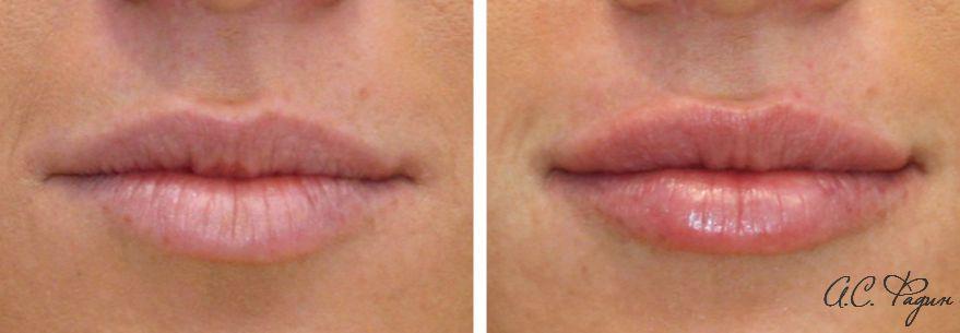 Увеличение губ филлером. Препарат Ювидерм Ультра Смайл. Фадин А.С.