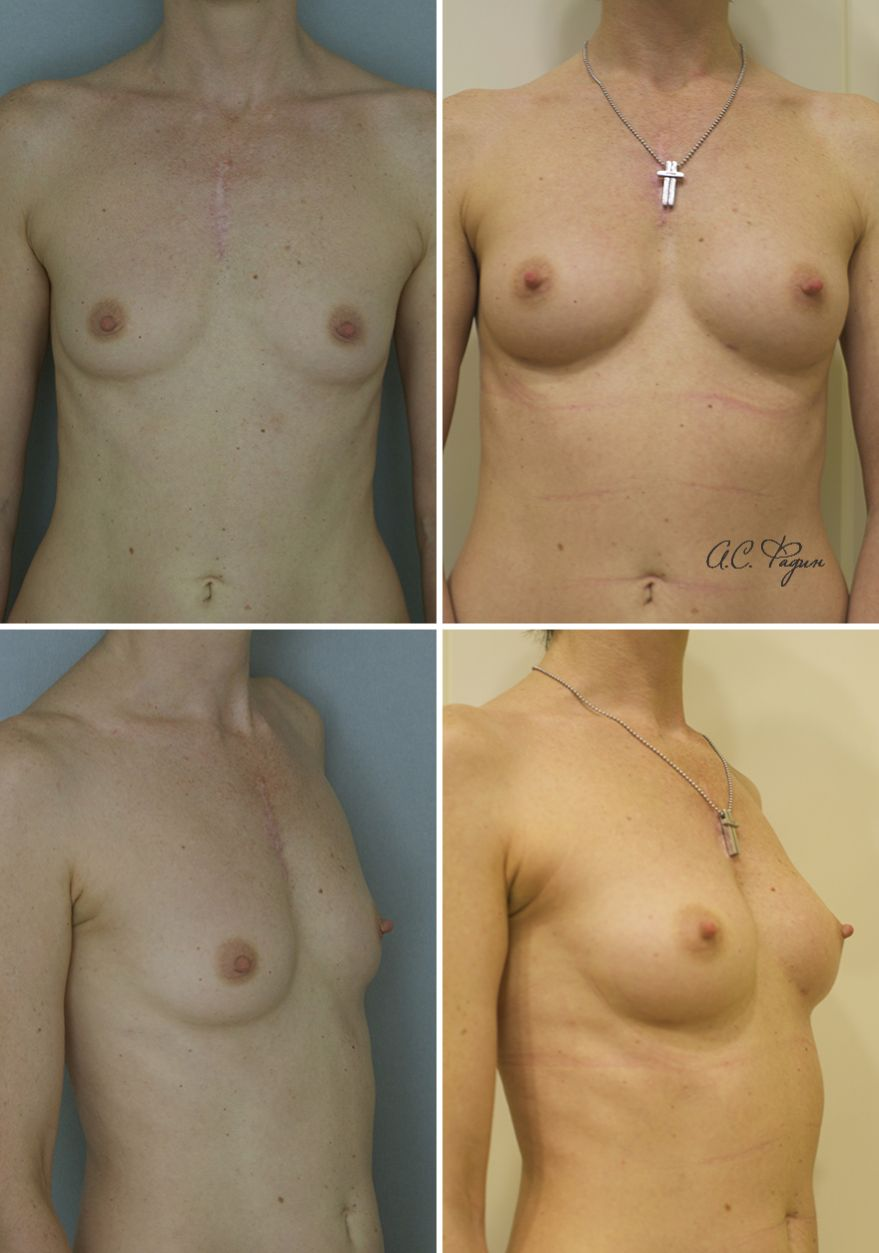 Липофилинг груди. Фадин А.С.