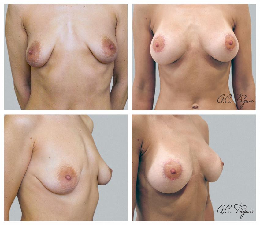 Подтяжка груди с увеличением имплантатами. Периареолярная подтяжка. Фадин А.С.