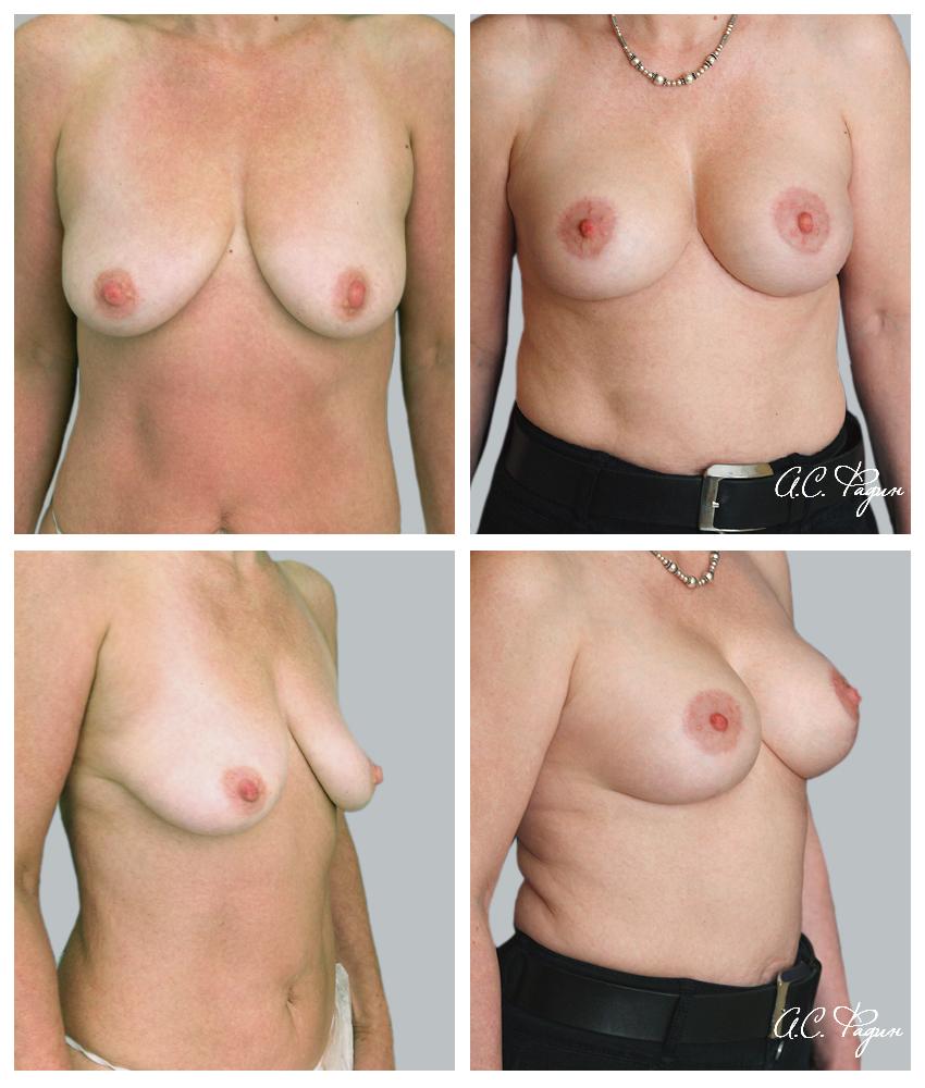 Подтяжка груди с увеличением имплантатами. T-образная подтяжка груди. Фадин А.С.