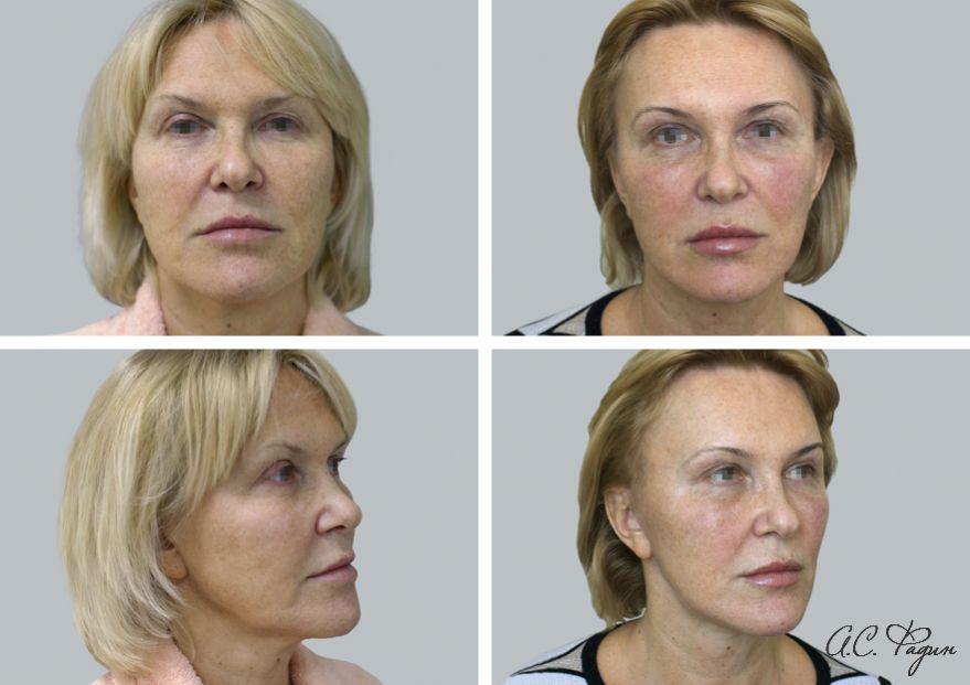 Хирургическая подтяжка лица. Фадин А.С.