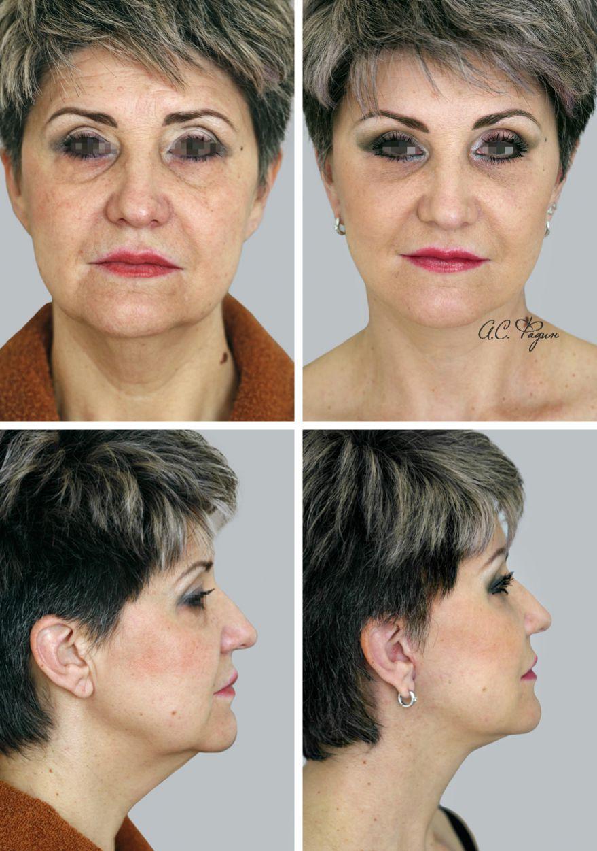 SMAS-подтяжка, эндоскопическая подтяжка лба, липофилинг. Фадин А.С.
