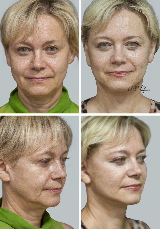 Хирургическое омоложение лица. Фадин А.С.