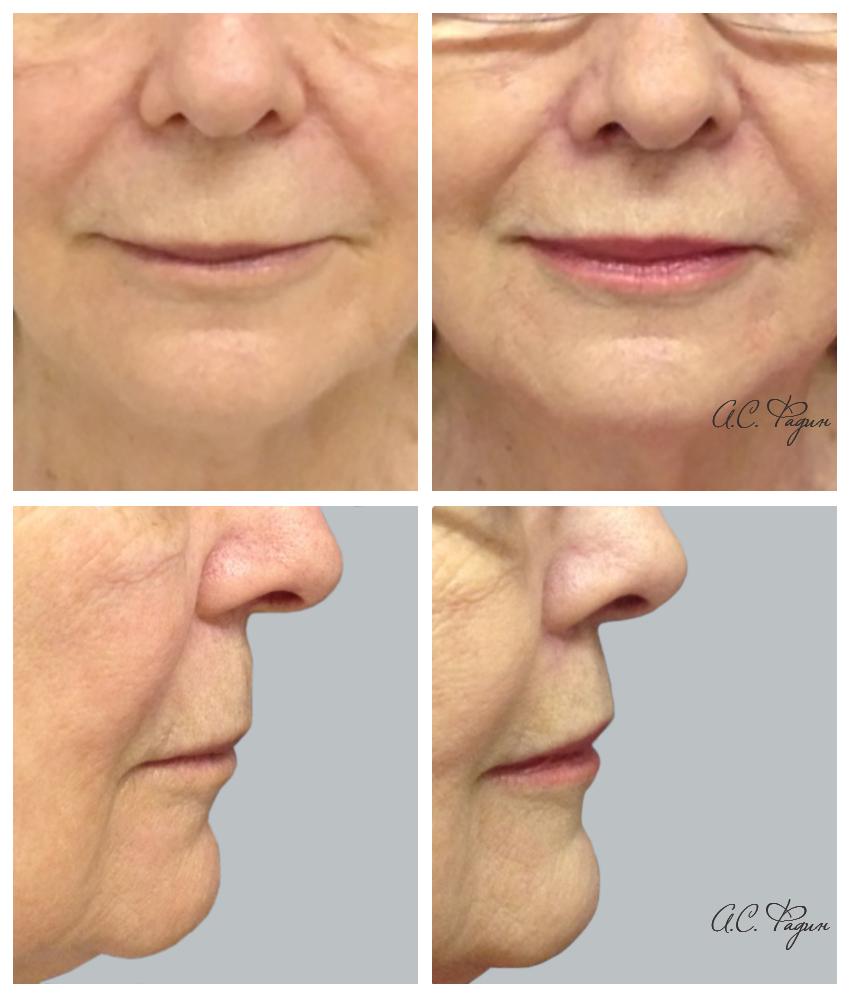 Подтяжка верхней губы