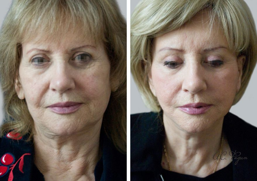 Хирургическое омоложение лица