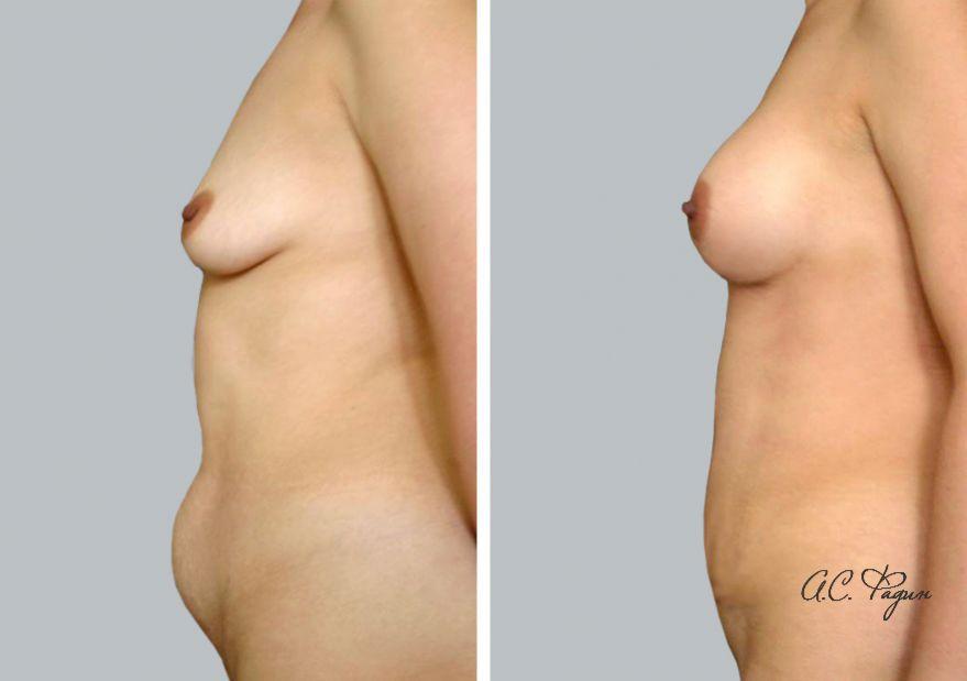 Пластика живота и груди при комплексном восстановлении после родов