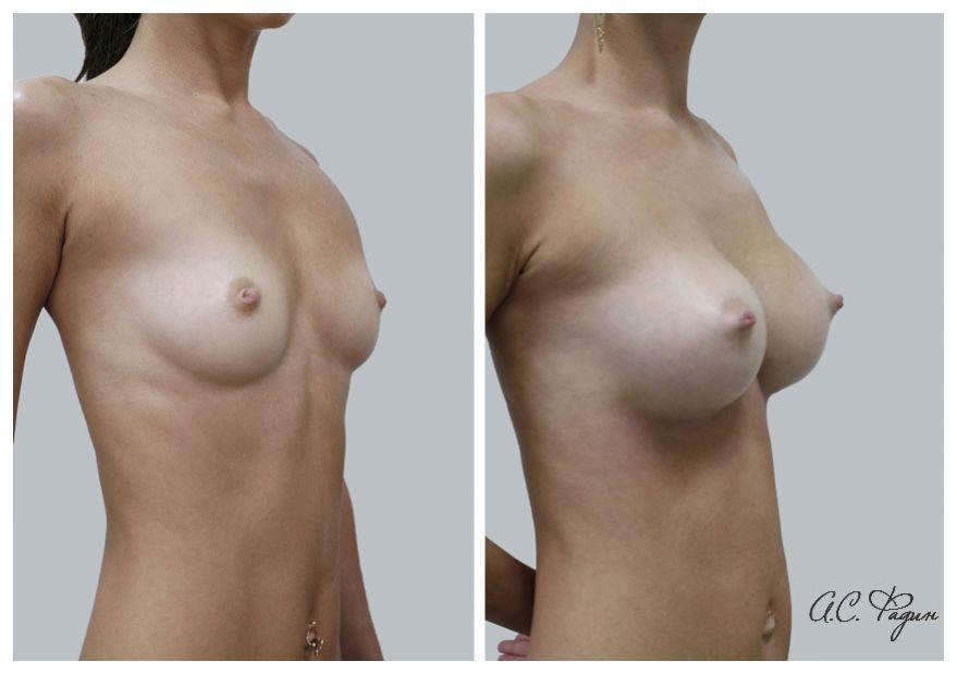 Увеличение груди имплантатами