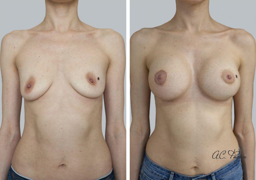 Увеличение груди имплантатами с применением липофилинга