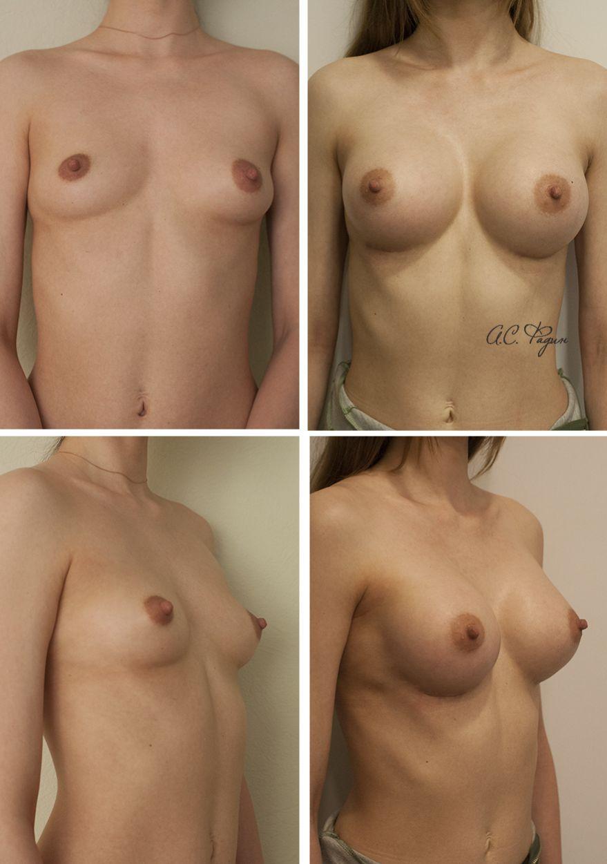 Маммопластика -увеличение груди