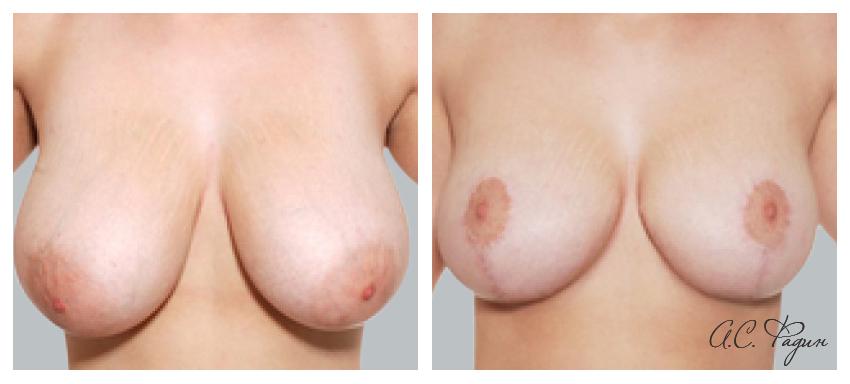 Уменьшение груди и вертикальная подтяжка