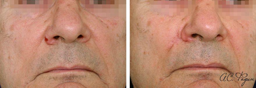 Удаление новообразования на носу