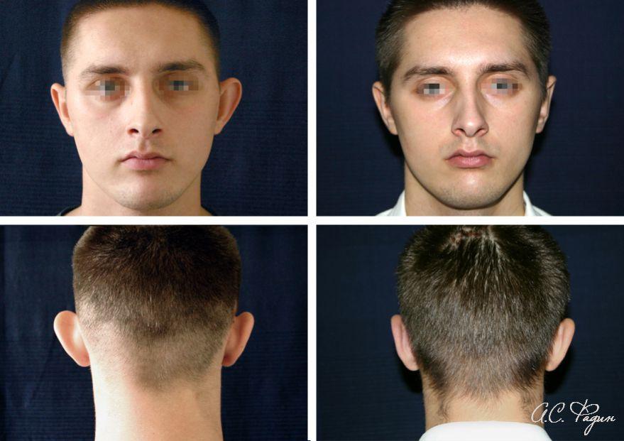 Устранение лопоухости и асимметрии ушей