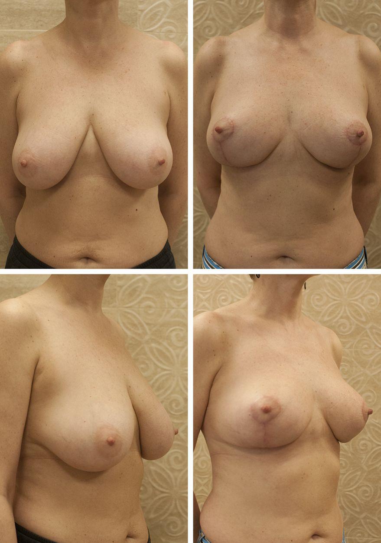 Уменьшение и подтяжка груди 5- го размера. Фадин А.С.